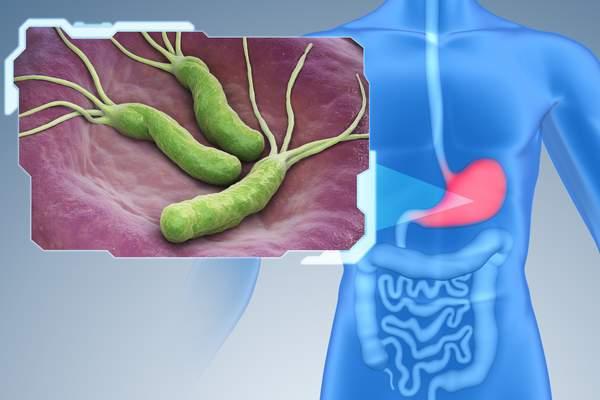 Helicobacter pylori является одним из основных факторов риска развития рака желудка