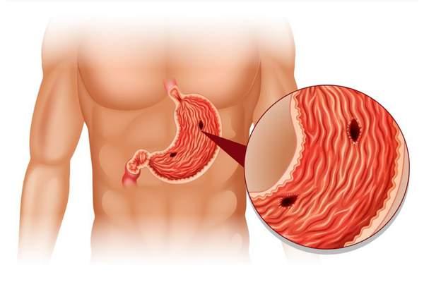Язвенная болезнь желудка и 12-перстной кишки. Часть 2.