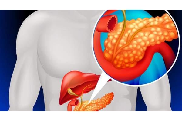 Характерные врачебные ошибки при лечении тяжелого острого панкреатита. Часть 3