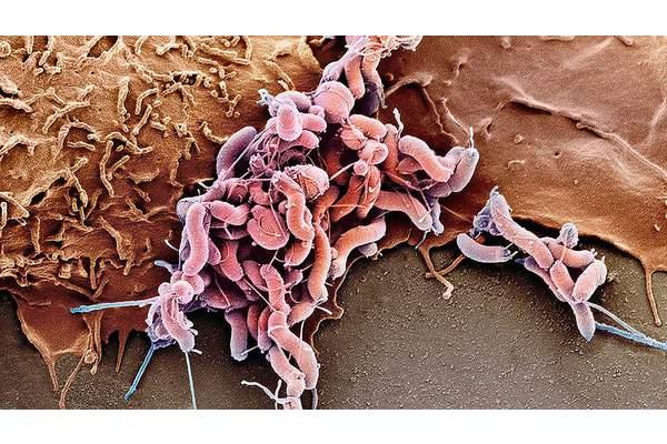 Современные схемы лечения HP (Helicobacter Pilori) инфекции у детей