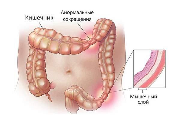 Синдром раздраженной кишки