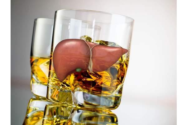 Алкогольная болезнь печени.