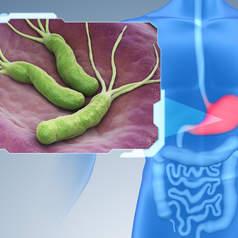 Helicobacter pylori является одним из основных факторов риска развития рака желудка и третьей наиболее распространенной причиной смертельных онкологических заболеваний