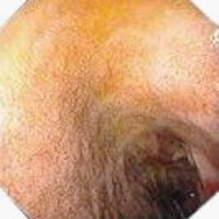 Дуоденоскопия: отсутствие складок слизистой оболочки двенадцатиперстной кишки.