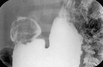Рентгенография: полип двенадцатиперстной кишки, проявляющийся дефектом наполнения округлой формы с четкими, несколько бугристыми контурами. фото 2.