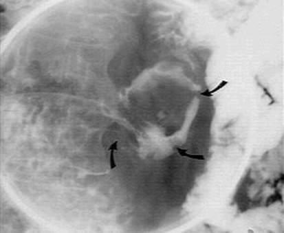 Рентгенография: лейомиома двенадцатиперстной кишки. фото 2.