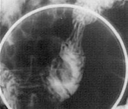 Рентгенография: дефект наполнения двенадцатиперстной кишки при подслизистой липоме округлой формы с четкими ровными контурами. фото 1.