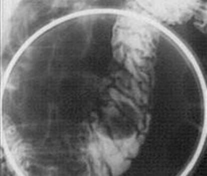 Рентгенография: дефект наполнения двенадцатиперстной кишки при подслизистой липоме округлой формы с четкими ровными контурами. фото 2.