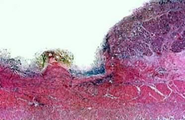 Отсутствие значительного слоя грубоволокнистой рубцовый ткани в краях язвы отличает язву двенадцатиперстной кишки от язвы желудка (микропрепарат).
