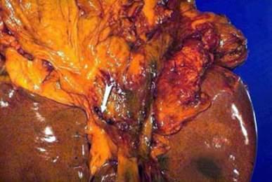 Язва двенадцатиперстной кишки, развившаяся на фоне дуоденита (макропрепарат).