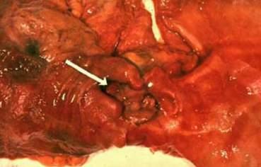 Пенетрация дуоденальной язвы.