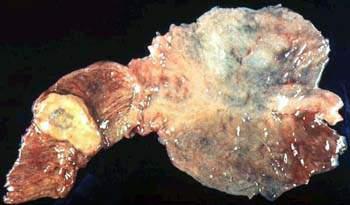 Рак Фатерова соска (макропрепарат). фото 1.