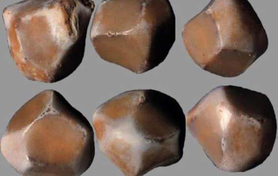 Конкременты. Камни с гранями в желчном пузыре.