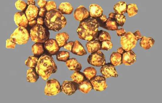 Конкременты. Комбинированные камни желчного пузыря – россыпь.