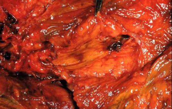 Конкременты. Конкремент общего желчного протока, «вколоченный» в ампулу Фатерова соска; макропрепарат.
