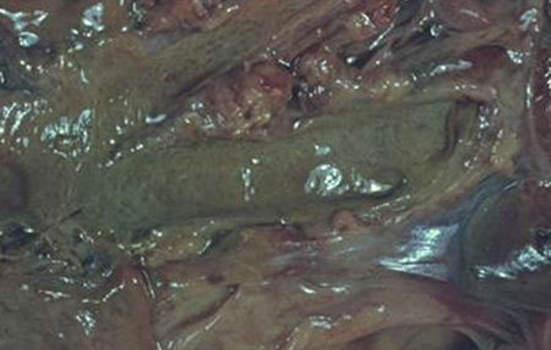 Конкременты. Камень общего желчного протока; макропрепарат.