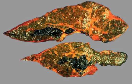 Холангит. Билиарный цирроз, камни-слепки внутрипеченочных желчных протоков; макропрепарат.