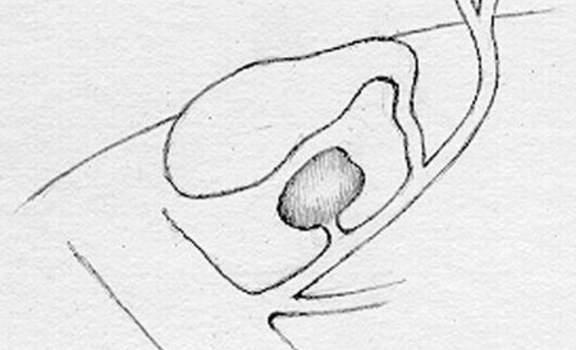 Кистозные расширения желчных протоков. Врожденный дивертикул гепатикохоледоха.