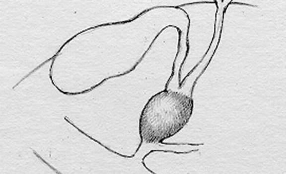 Кистозные расширения желчных протоков. Многочисленные вне- и внутрипеченочные кисты желчных протоков.