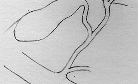 Кистозные расширения желчных протоков. Внутрипеченочные кисты желчных протоков.