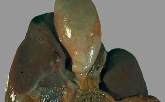 Острый холецистит. А. Водянка желчного пузыря; макропрепарат.
