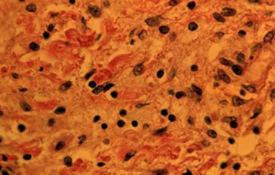 Холестероз желчного пузыря. Б. Очаги накопления холестерина в стенке желчного пузыря; микропрепарат (среднее увеличение).