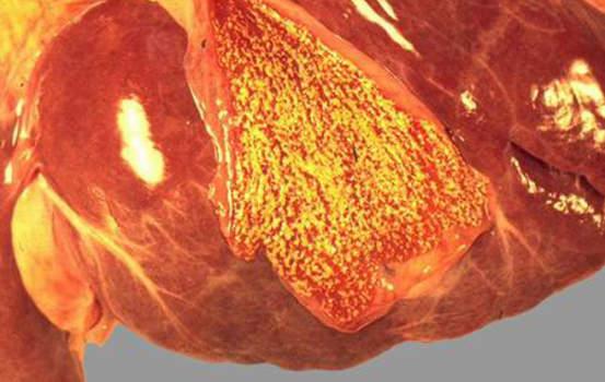 Холестероз желчного пузыря. А. Накопление холестерина в стенке желчного пузыря; макропрепарат.