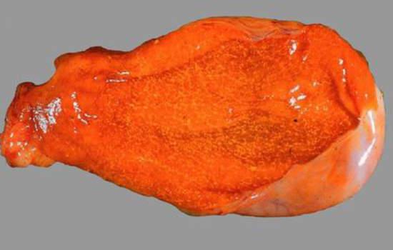 Холестероз желчного пузыря. Б. Накопление холестерина в стенке желчного пузыря; макропрепарат.