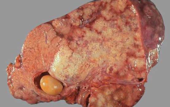 Рак желчного пузыря. Рак желчного пузыря; макропрепарат.