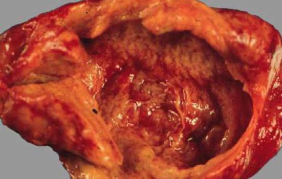 Рак желчного пузыря. Мелкоклеточная карцинома желчного пузыря; макропрепарат.