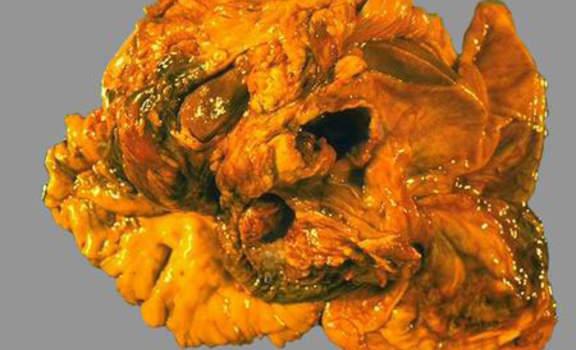 Рак желчного пузыря. А. Рак желчного пузыря; макропрепарат.