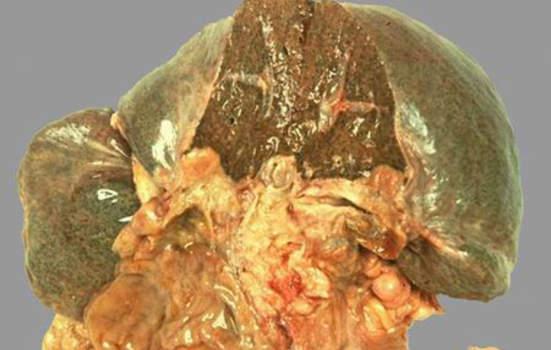 Рак желчного пузыря. А. Прорастание рака желчного пузыря; макропрепарат.