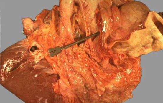 Рак желчного пузыря. Б. Прорастание рака желчного пузыря; макропрепарат.