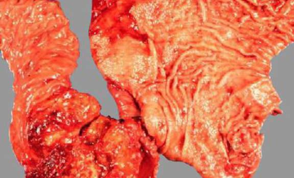 Рак желчных протоков. А. Аденокарцинома ампулы Фатерова соска; макропрепарат.