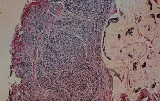Рак желчных протоков. Б. Аденокарцинома ампулы Фатерова соска; микропрепарат.