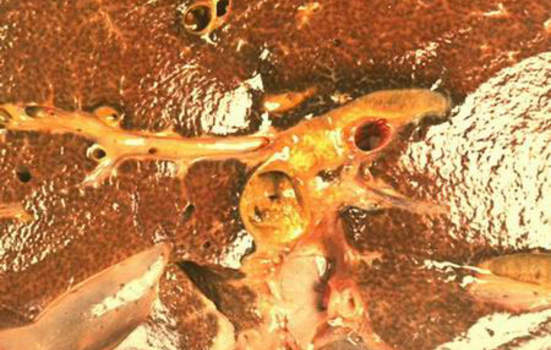 Рак желчных протоков.Карцинома желчного протока; макропрепарат.