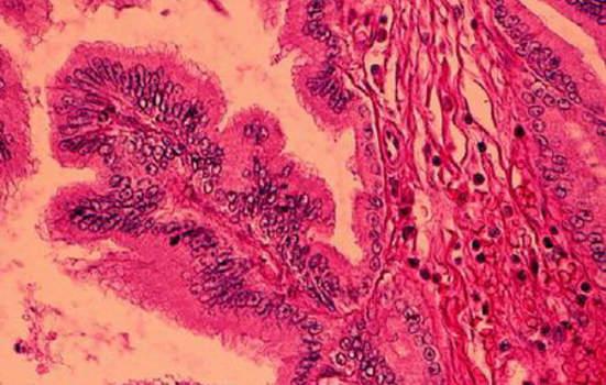 Рак желчных протоков. Б. Высокодифференцированная карцинома общего печеночного протока; микропрепарат.