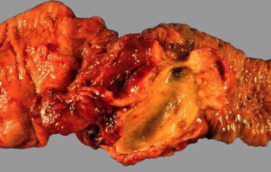 Рак желчных протоков. Аденокарцинома ампулы Фатерова соска, с дилятацией общего желчного протока; макропрепарат.
