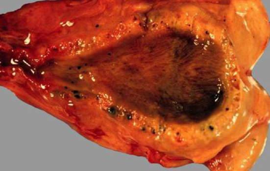 Хронический холецистит. Хронический холецистит: хорошо видны изменения строения стенки желчного пузыря; макропрепарат.