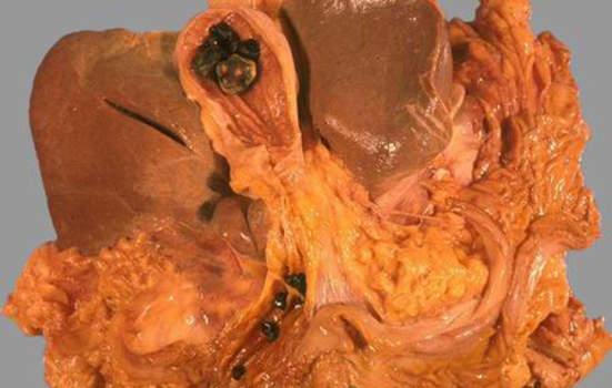 Конкременты. Камни в желчном пузыре и гепатикохоледохе; макропрепарат.