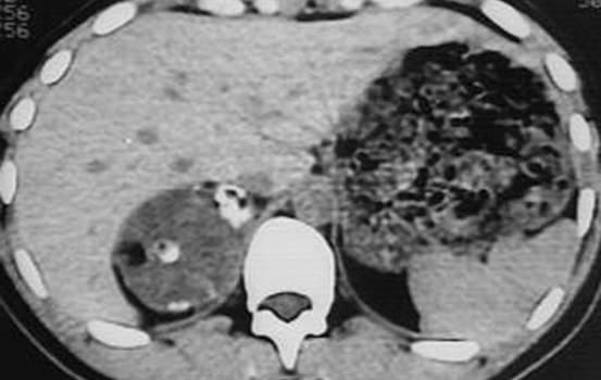 Феохромоцитомы надпочечников. Б. Компьютерная томография: гиподенсное образование правого надпочечника с периферическим скоплением кальцификатов - феохромоцитома.