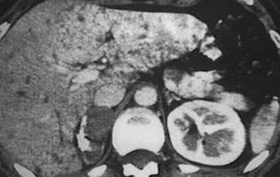 Другие доброкачественные опухоли надпочечников. Компьютерная томография: гиподенсное, частично кальцифицированное, не накапливающее йод-содержащий контраст образование правого надпочечника размером около 4 см - доброкачественная ганглионеврома.
