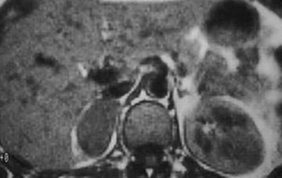 Другие доброкачественные опухоли надпочечников. Ядерно-магнитная томография (T1): гетерогенное, гипоинтенсивное, сравнимое по плотности с плотностью паренхимы печени образование правого надпочечника - доброкачественная ганглионеврома.