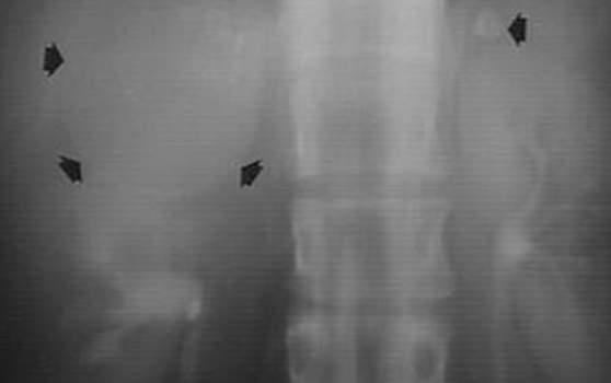 Кальцинаты надпочечников. Рентгенография: новообразование правого надпочечника с пери- и интратуморозной кальцификацией, соответствующее кальцифицированной злокачественной опухоли.
