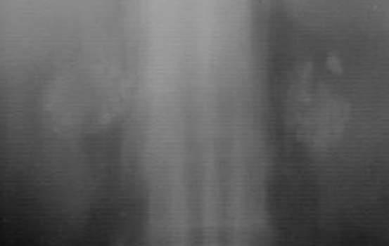 Кальцинаты надпочечников. Рентгенография: кальцификаты в обоих надпочечниках представлены гиперденсными образованиями на фоне узловой гиперторофии.