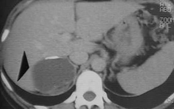 Кисты надпочечников. Компьютерная томография: кальцификация стенки жидкостного образования правого надпочечника.