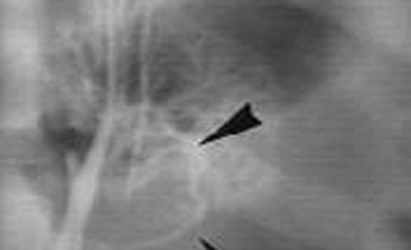 Аденомы надпочечников. Б. Флебография: в нижнем полюсе надпочечника дуга вены отклонена (тот же случай, что и на предыдущем рисунке А.).