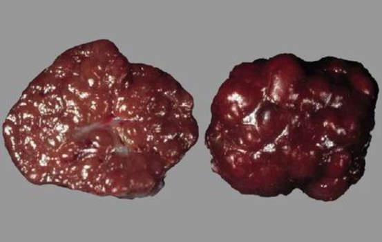 Гиперплазия коркового вещества надпочечников. Узловая гиперплазия надпочечника; макропрепарат.