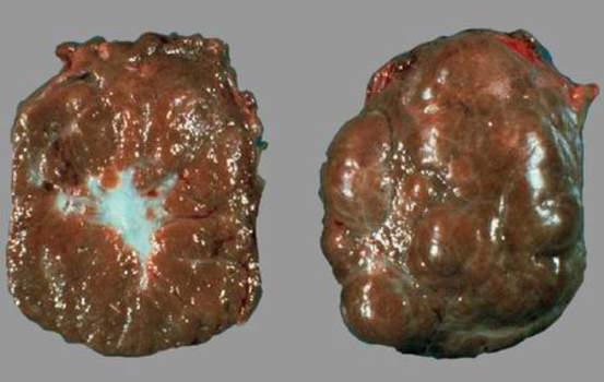 Гиперплазия коркового вещества надпочечников. Узловая гиперплазия надпочечника: окраска узлов на разрезе не отличается от окраски остальных участков коры; макропрепарат.