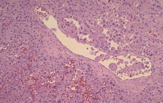 Адренокортикальный рак. Световая микроскопия при большом увеличении демонстрирует близкое сходство кортикальной карциномы с нормальной корой надпочечника; микропрепарат.